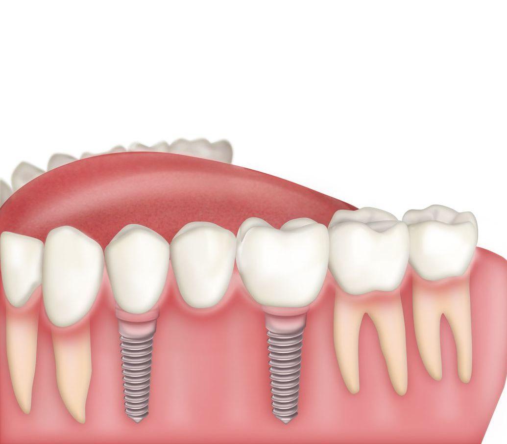 Puentes-sobre-2-implantes